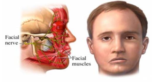 Parálisis de los Músculos Faciales   Dental Smile